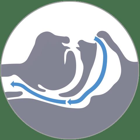Offener Luftstrom und normale Atmung bei behandeltem Schlaf-APNOE-Patienten mit Schlafschiene Narval CC