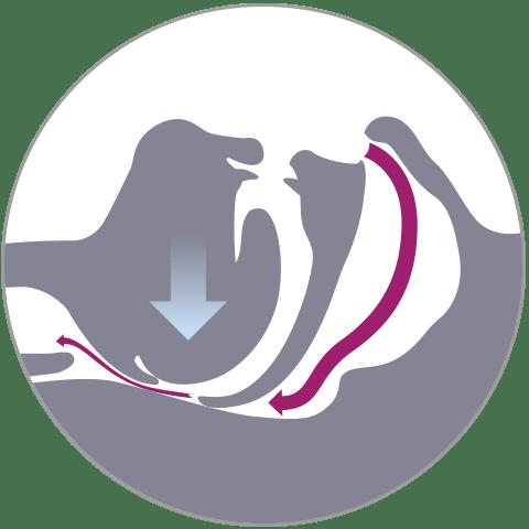 Schnarchen durch gestörten Luftstrom bei unbehandeltem Schlaf-APNOE-Patienten